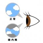 glaucoma-seijoganatu